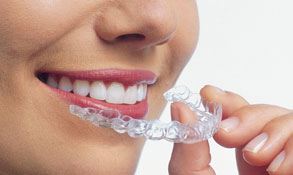 Ask us about Invisalign link, showing a smiling young woman holding the clear plastic Invisalign device in front of her mouth.