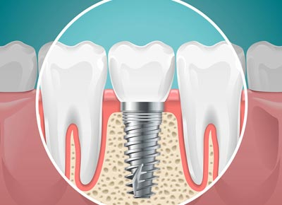 Link to the Restorative Dentistry page showing an informational illustration of a replacement tooth dental implant.